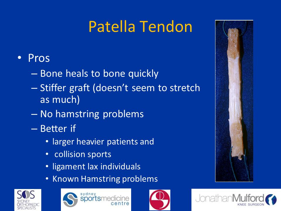 Patella Tendon Pros – Bone heals to bone quickly – Stiffer graft (doesnt seem to stretch as much) – No hamstring problems – Better if larger heavier patients and collision sports ligament lax individuals Known Hamstring problems