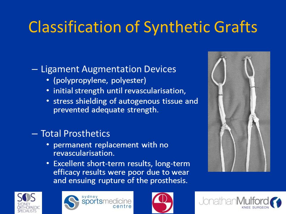 Classification of Synthetic Grafts – Ligament Augmentation Devices (polypropylene, polyester) initial strength until revascularisation, stress shielding of autogenous tissue and prevented adequate strength.