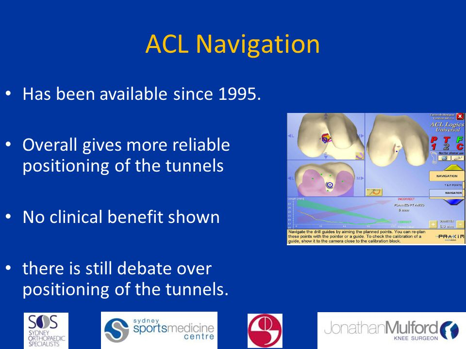 ACL Navigation Has been available since 1995.