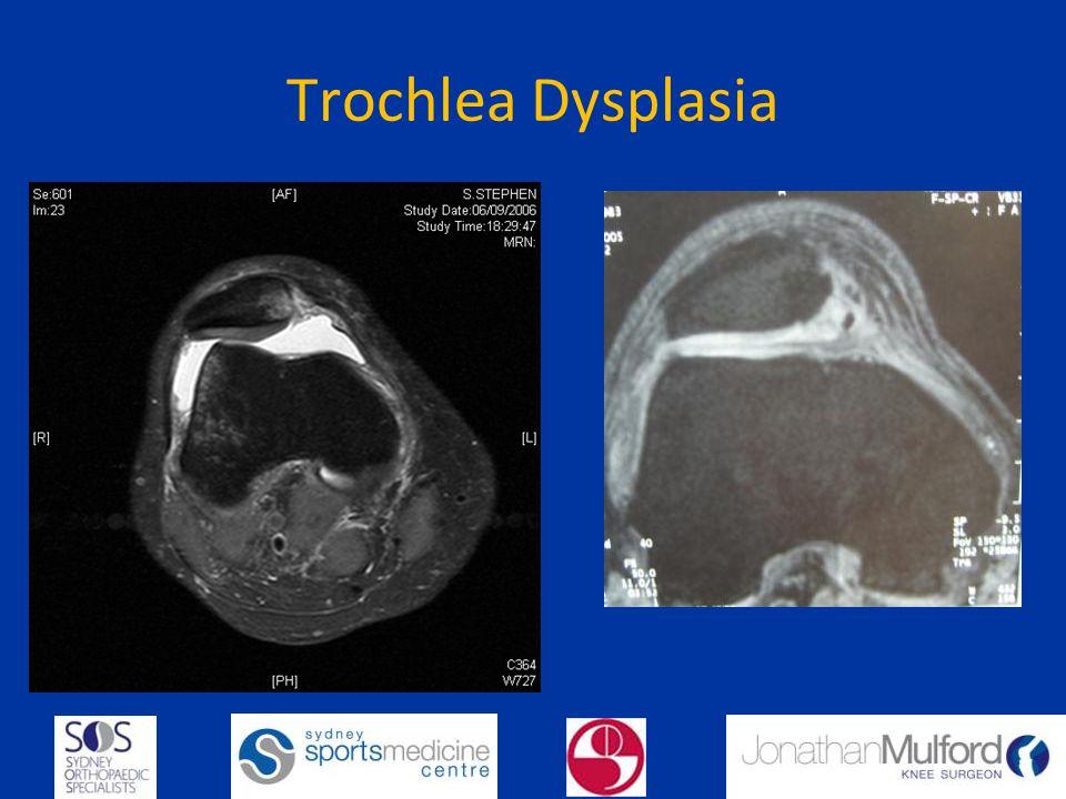 Trochlea Dysplasia