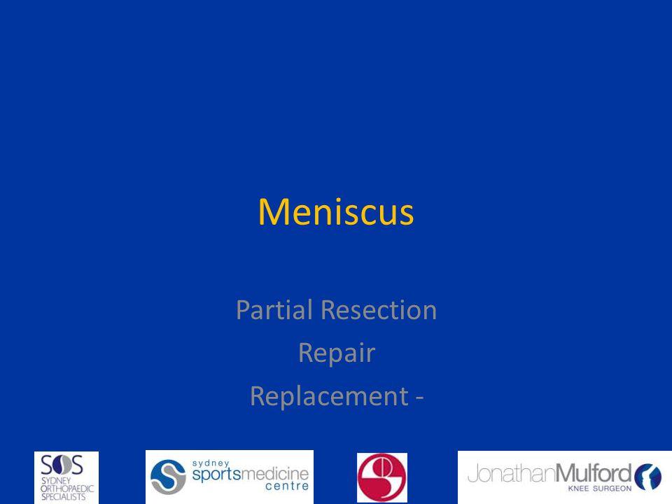 Meniscus Partial Resection Repair Replacement -