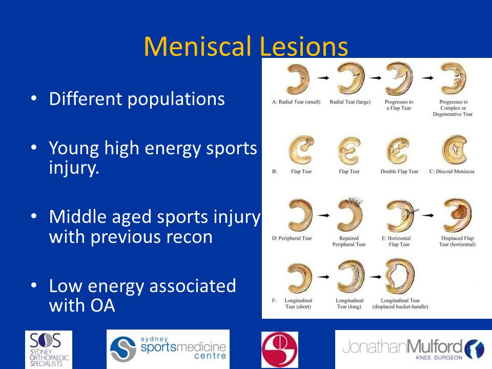 Meniscal Lesions Different populations Young high energy sports injury. Middle aged sports injury with previous recon Low energy associated with OA