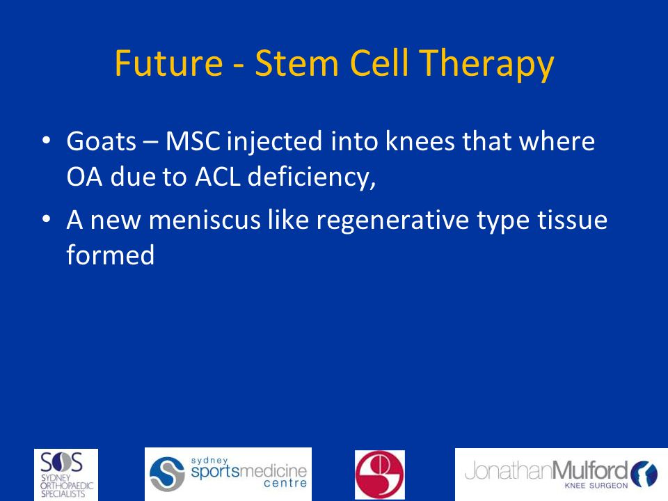 Future - Stem Cell Therapy Goats – MSC injected into knees that where OA due to ACL deficiency, A new meniscus like regenerative type tissue formed