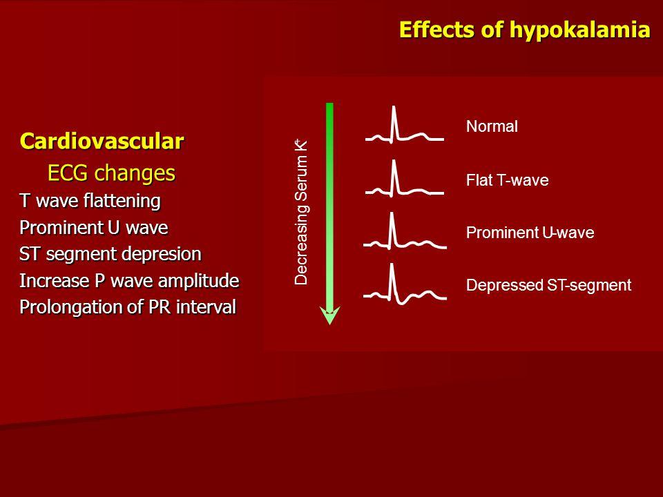 Effects of hypokalamia Cardiovascular ECG changes ECG changes T wave flattening Prominent U wave ST segment depresion Increase P wave amplitude Prolon