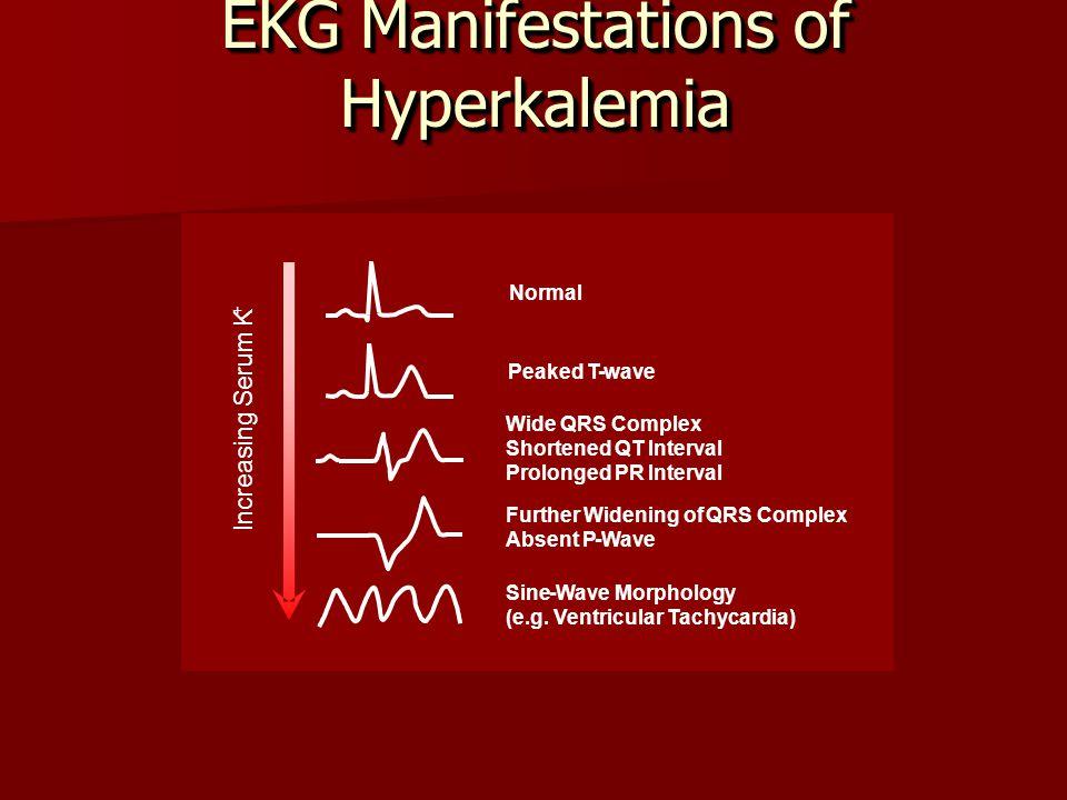 EKG Manifestations of Hyperkalemia Wide QRSComplex Shortened QT Interval Prolonged PR Interval Further Widening ofQRS Complex Absent P-Wave Sine-Wave