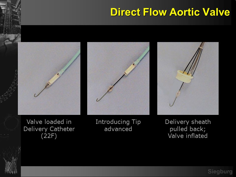 Direct Flow Aortic Valve Valve loaded in Delivery Catheter (22F) Introducing Tip advanced Delivery sheath pulled back; Valve inflated