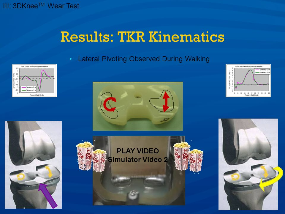 Results: TKR Kinematics III: 3DKnee TM Wear Test Lateral Pivoting Observed During Walking PLAY VIDEO Simulator Video 2