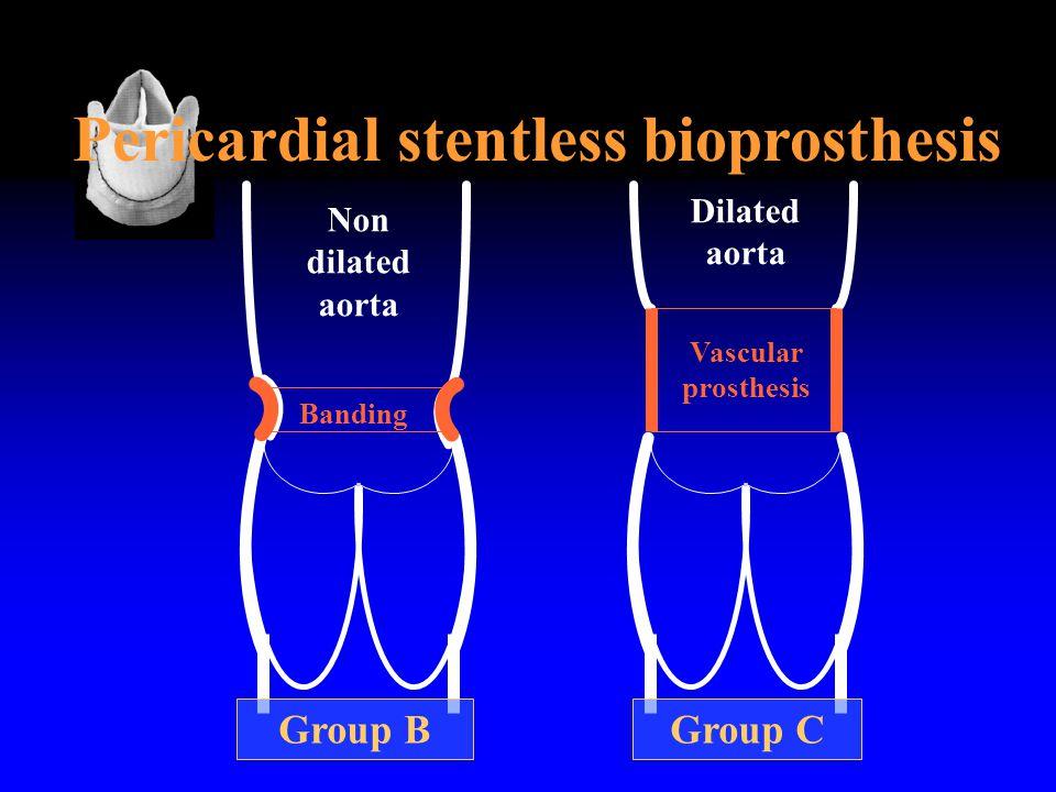 Pericardial stentless bioprosthesis Vascular prosthesis Banding Group BGroup C Dilated aorta Non dilated aorta