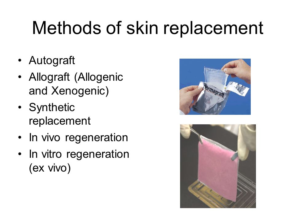 Methods of skin replacement Autograft Allograft (Allogenic and Xenogenic) Synthetic replacement In vivo regeneration In vitro regeneration (ex vivo)