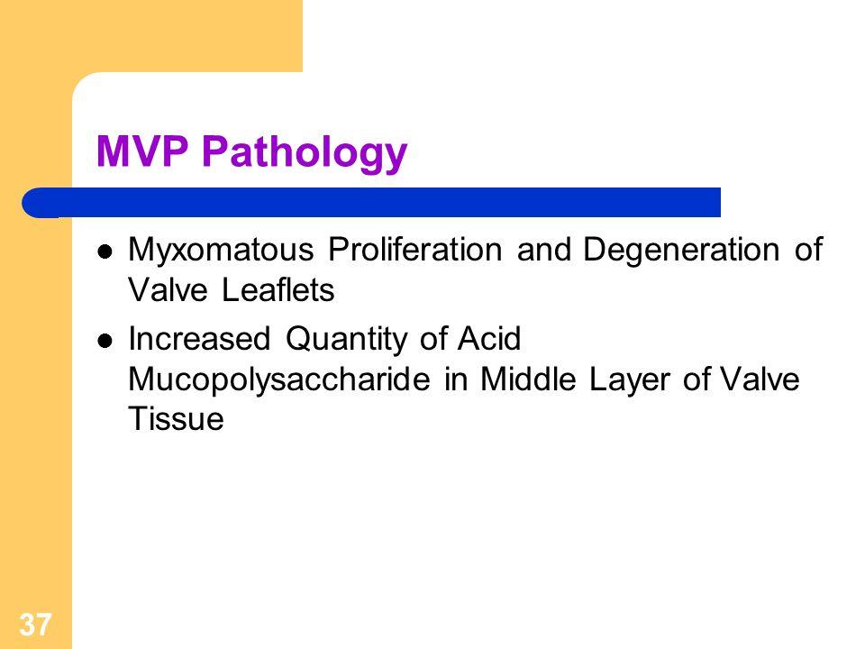 37 MVP Pathology Myxomatous Proliferation and Degeneration of Valve Leaflets Increased Quantity of Acid Mucopolysaccharide in Middle Layer of Valve Ti