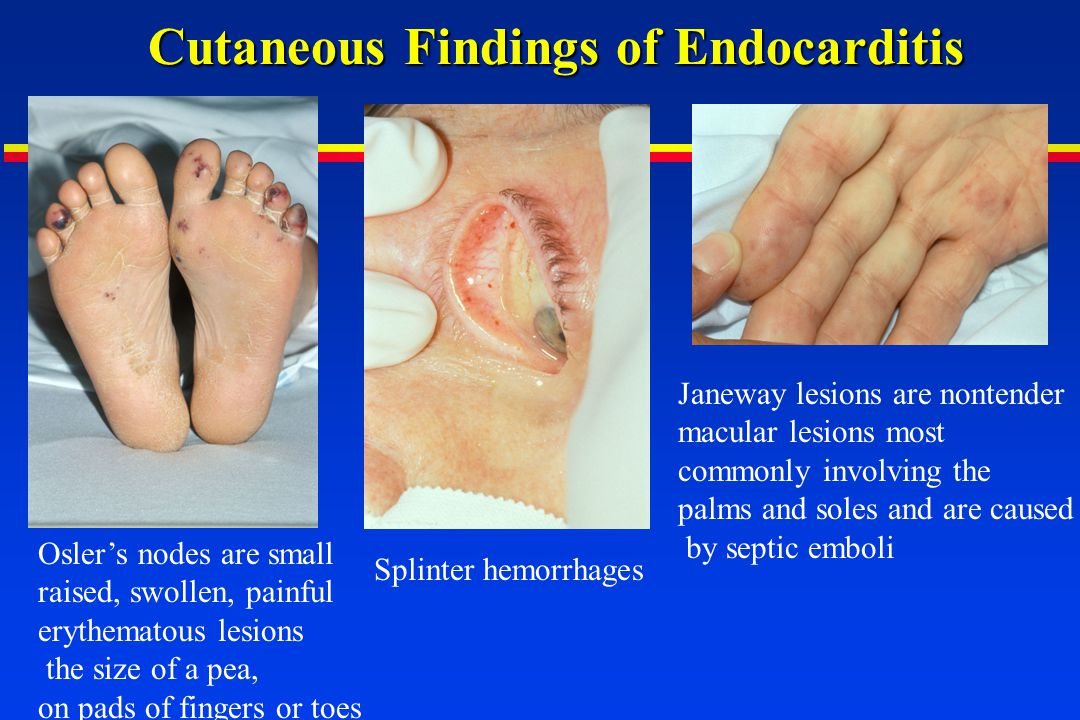 Cutaneous Findings of Endocarditis Oslers nodes are small raised, swollen, painful erythematous lesions the size of a pea, on pads of fingers or toes