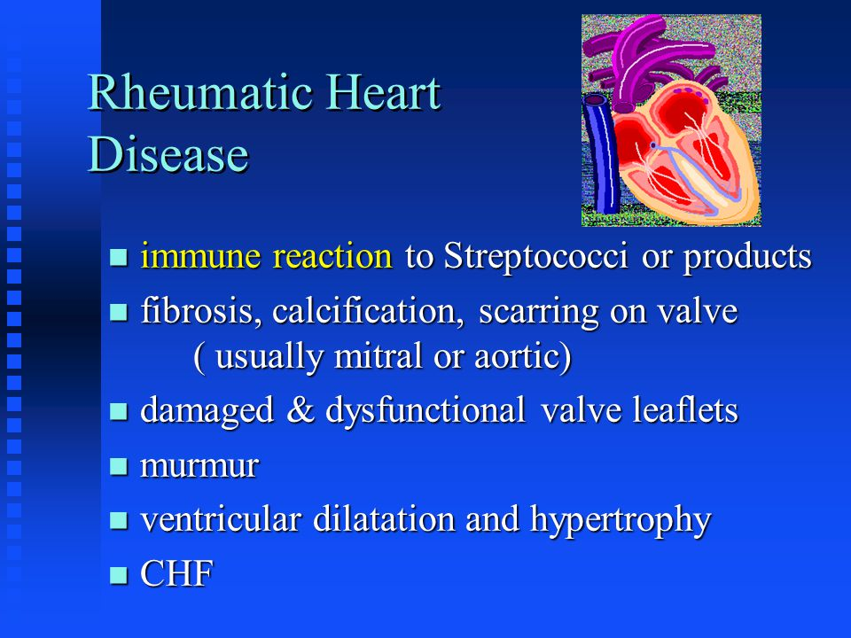 Rheumatic Heart Disease immune reaction to Streptococci or products immune reaction to Streptococci or products fibrosis, calcification, scarring on v