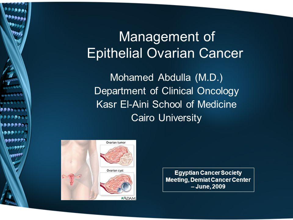 Management of Epithelial Ovarian Cancer Mohamed Abdulla (M.D.) Department of Clinical Oncology Kasr El-Aini School of Medicine Cairo University Egyptian Cancer Society Meeting, Demiat Cancer Center – June, 2009