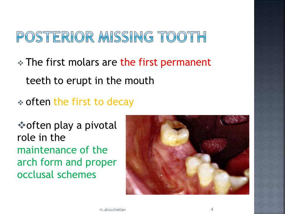 When external root resorption is the cause of structural failure of the tooth root, Bone, replacing the root defect No evidence of a periodontal ligament space around the defect is seen orthodontic extrusion is not possible Delaying the extraction as long as possible the remaining root segments may be cored out during the implant osteotomy procedure If the surgical defect is too large for immediate implant insertion, then the osteotomy is grafted and the implant procedure is delayed.