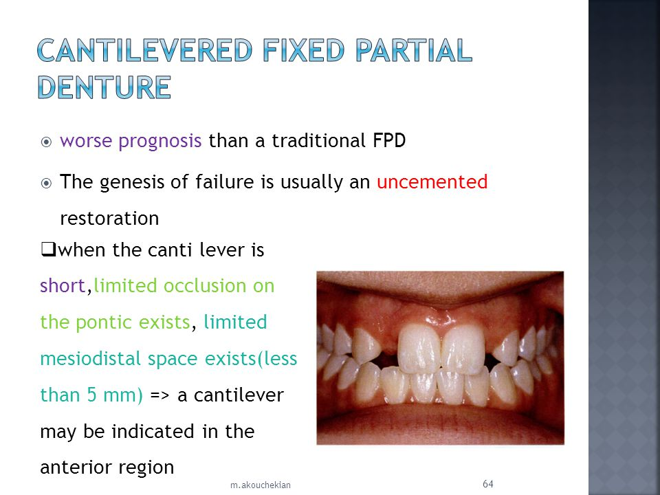 worse prognosis than a traditional FPD The genesis of failure is usually an uncemented restoration m.akouchekian 64 when the canti lever is short,limi