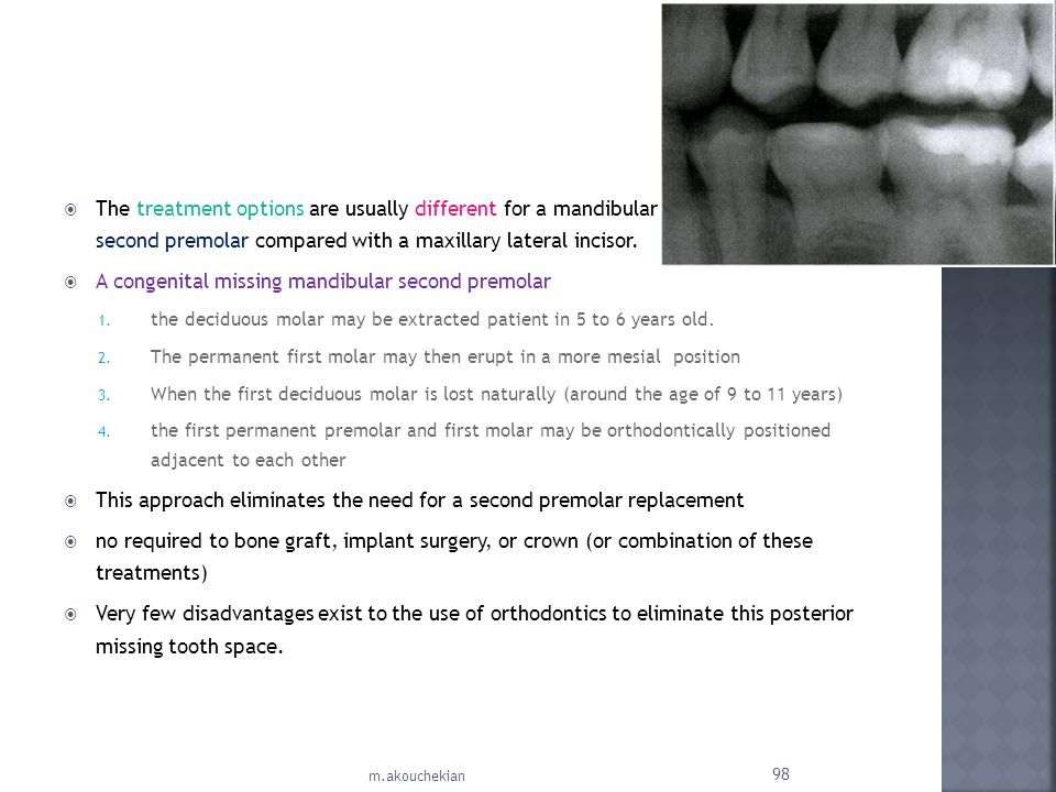 The treatment options are usually different for a mandibular second premolar compared with a maxillary lateral incisor. A congenital missing mandibula