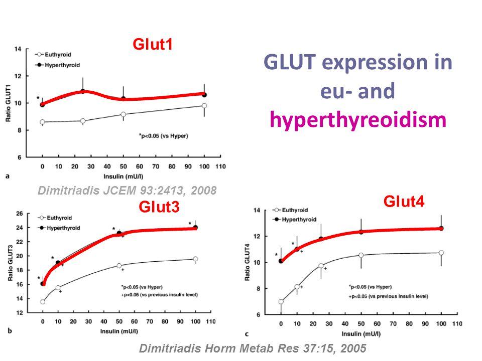 GLUT expression in eu- and hyperthyreoidism Dimitriadis Horm Metab Res 37:15, 2005 Glut1 Glut3 Glut4 Dimitriadis JCEM 93:2413, 2008