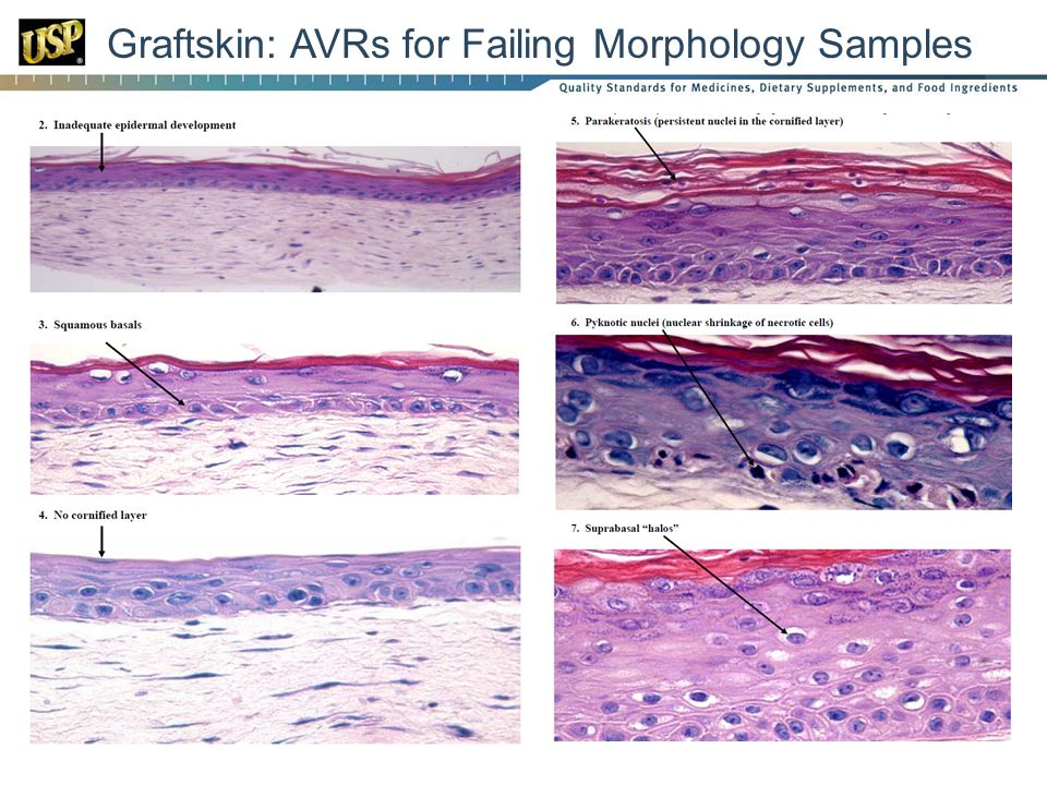 Graftskin: AVRs for Failing Morphology Samples