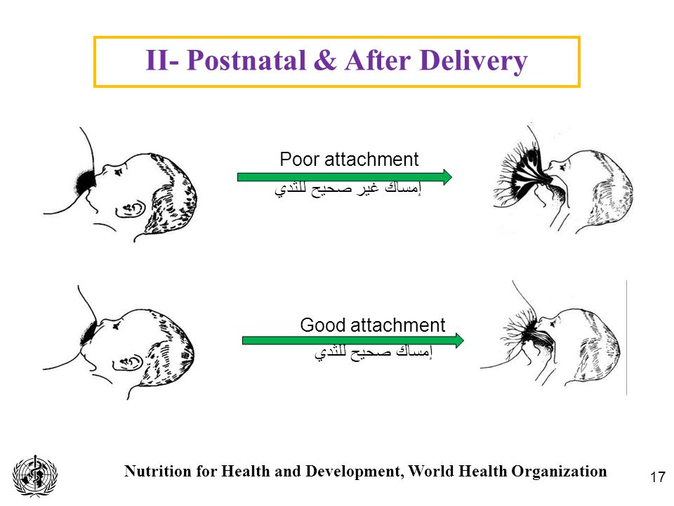 Nutrition for Health and Development, World Health Organization II- Postnatal & After Delivery 17 Good attachment إمساك صحيح للثدي Poor attachment إمس