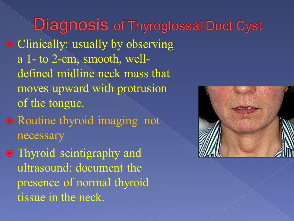 Clinically: usually by observing a 1- to 2-cm, smooth, well- defined midline neck mass that moves upward with protrusion of the tongue. Routine thyroi