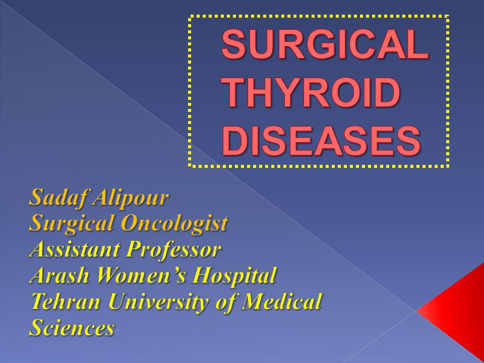 The leading cause of hypothyroidism Autoimmune process More common in 30-50 yr women (male:female ratio 1:10 to 20 )