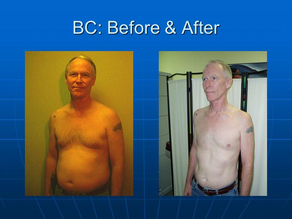 Case Study: B.C. Estrogen Levels: Treatment: DIM 400 mg /day PACE TIW April, 2003 180pg/mL July, 2003 178pg/mL August, 2003 149pg/mL October,2003134pg