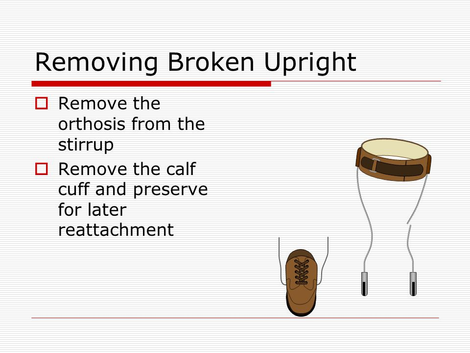 Removing Broken Upright Remove the orthosis from the stirrup Remove the calf cuff and preserve for later reattachment