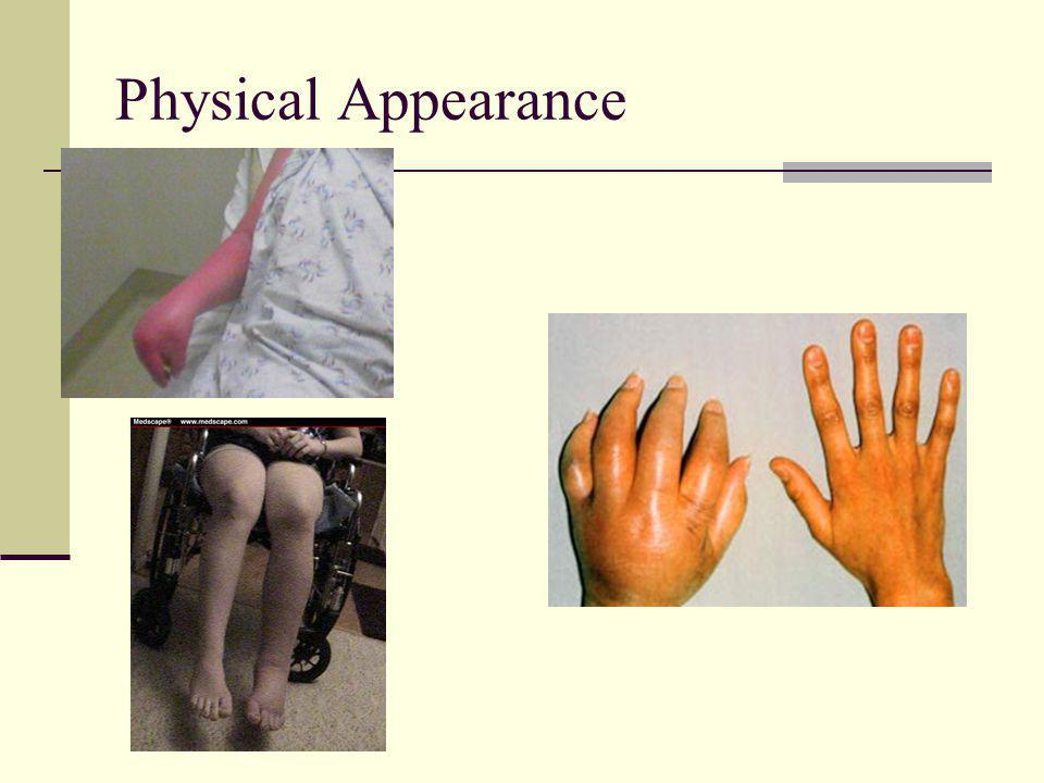 Physical Appearance