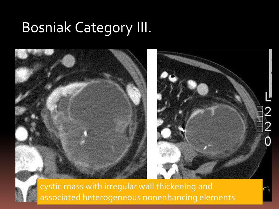 Bosniak Category III. cystic mass with irregular wall thickening and associated heterogeneous nonenhancing elements