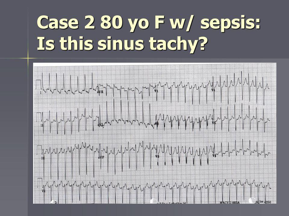 Case 2 80 yo F w/ sepsis: Is this sinus tachy?