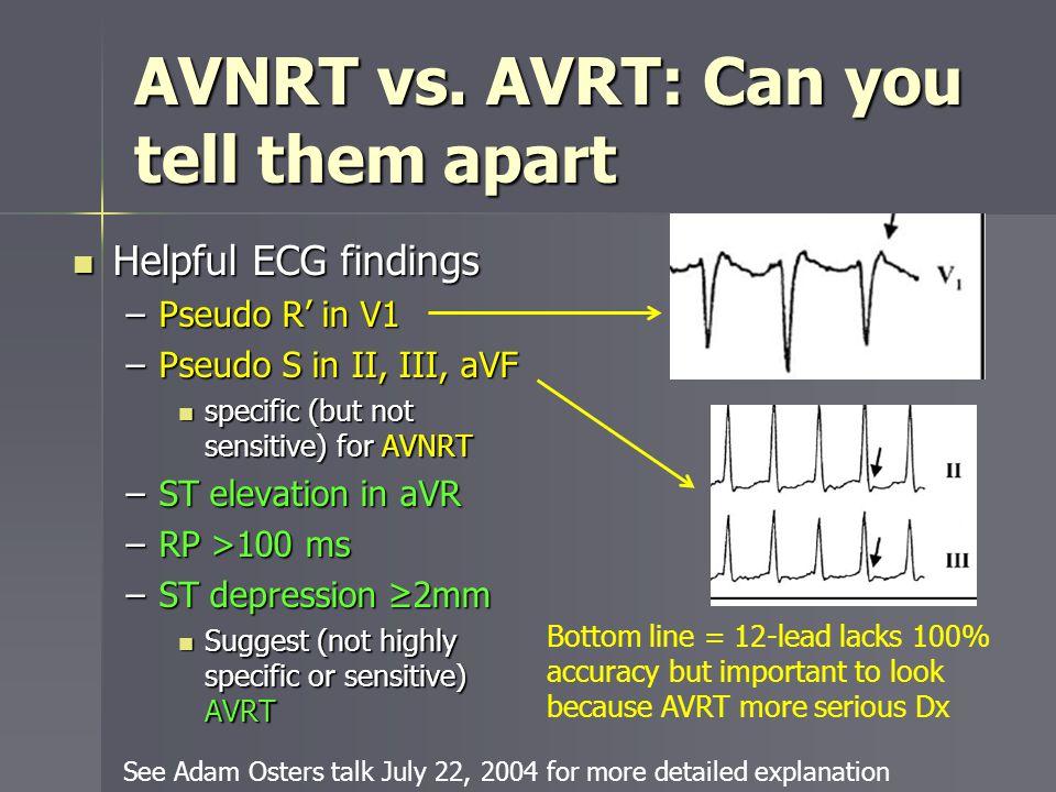 AVNRT vs. AVRT: Can you tell them apart Helpful ECG findings Helpful ECG findings –Pseudo R in V1 –Pseudo S in II, III, aVF specific (but not sensitiv