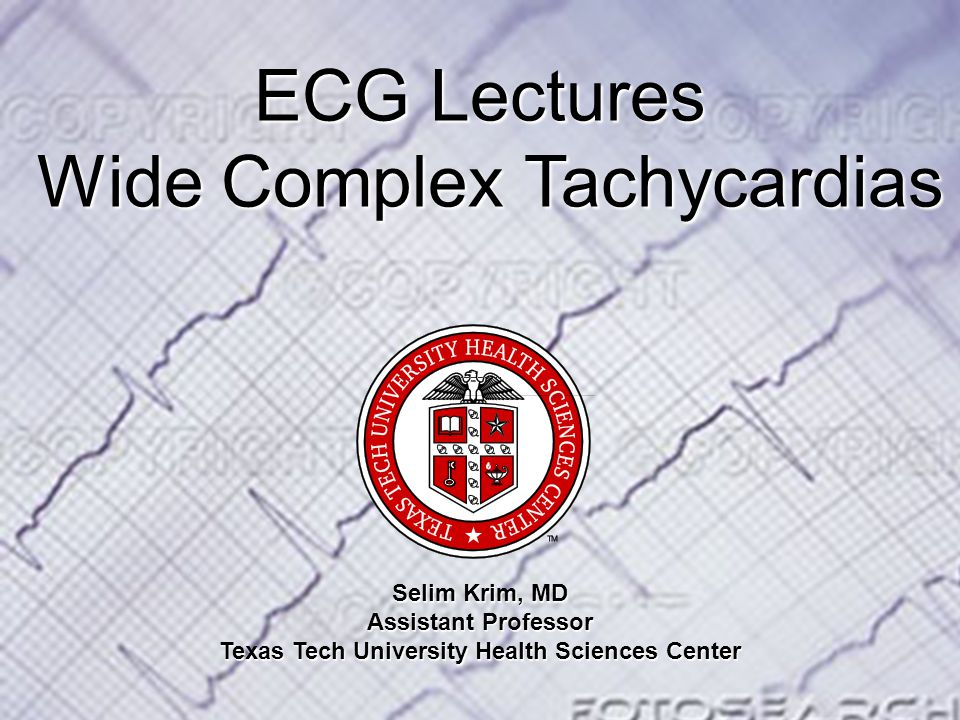 Objectives Understand the importance and clinical consequence of making the right diagnosis of wide complex tachycardia Get familiar with the different etiologies of wide complex tachycardia Step wise approach to diagnosing wide complex tachycardia Recognize SVT with aberrancy from ventricular Tachycardia