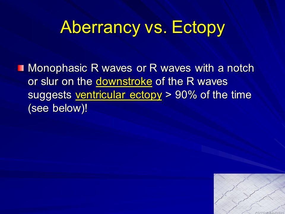 Aberrancy vs. Ectopy Monophasic R waves or R waves with a notch or slur on the downstroke of the R waves suggests ventricular ectopy > 90% of the time