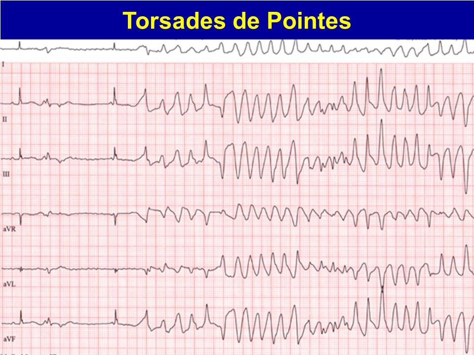 ECG Clues to Ventricular Tachycardia Regularity of the rhythm: If the wide QRS tachycardia is sustained and monomorphic, then the rhythm is usually regular (i.e., RR intervals equal) A-V Dissociation strongly suggests ventricular tachycardia.