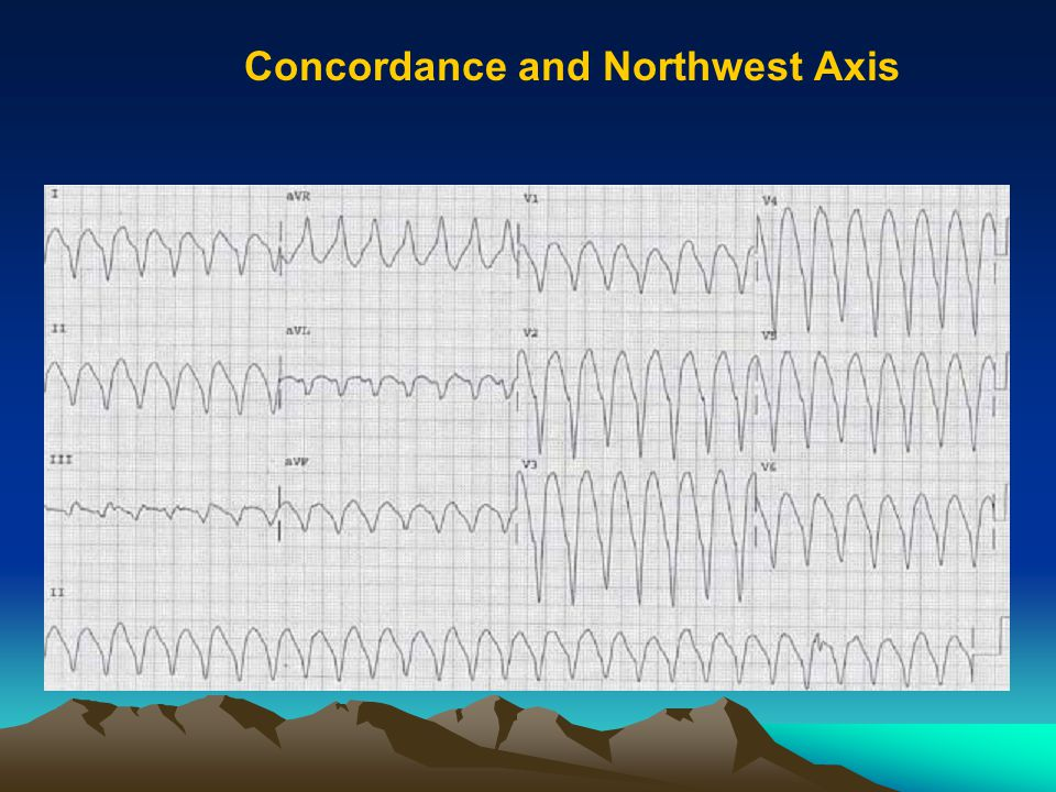 Concordance and Northwest Axis
