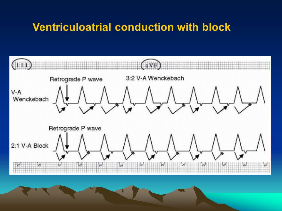 Ventriculoatrial conduction with block