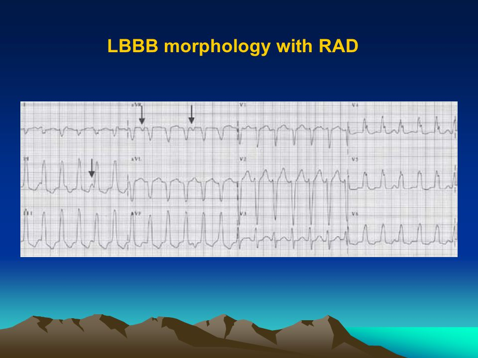 LBBB morphology with RAD