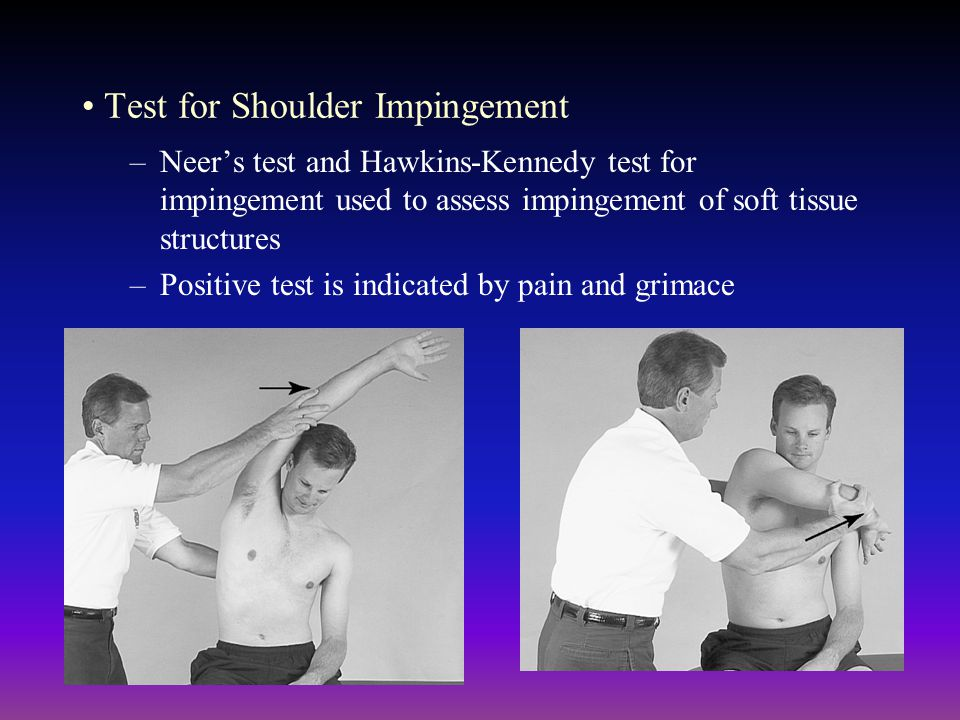 Test for Shoulder Impingement –Neers test and Hawkins-Kennedy test for impingement used to assess impingement of soft tissue structures –Positive test