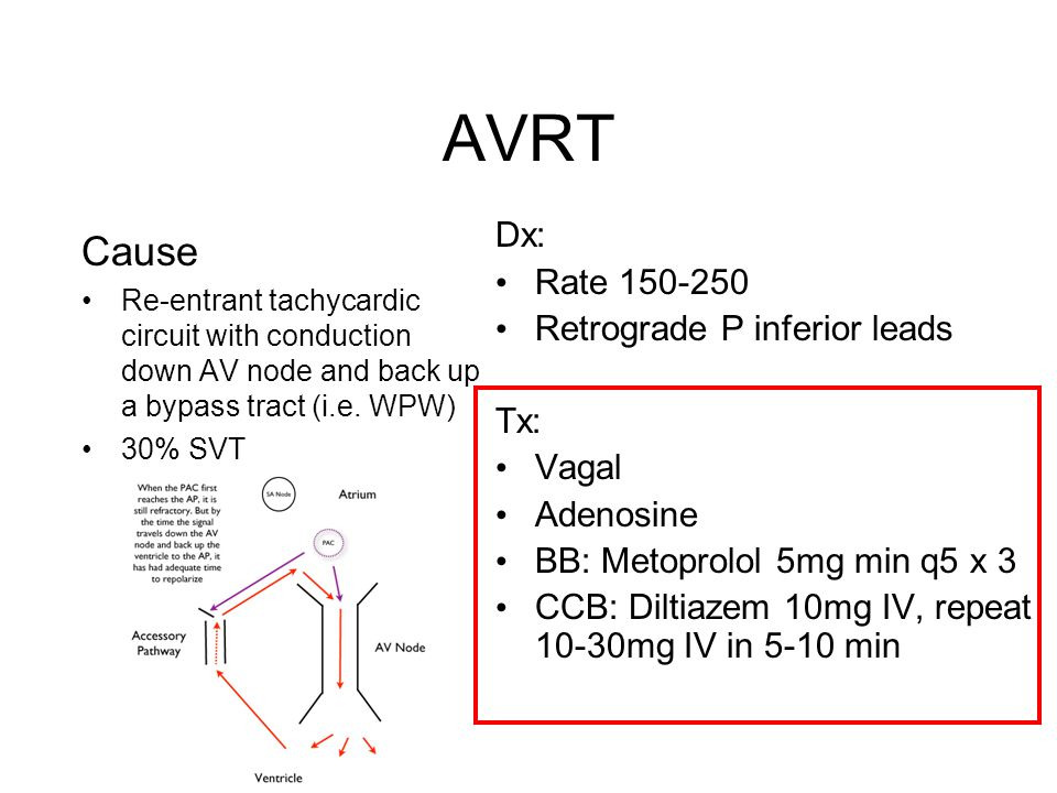 AVRT Cause Re-entrant tachycardic circuit with conduction down AV node and back up a bypass tract (i.e.