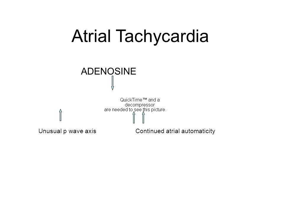 ADENOSINE Atrial Tachycardia Unusual p wave axisContinued atrial automaticity