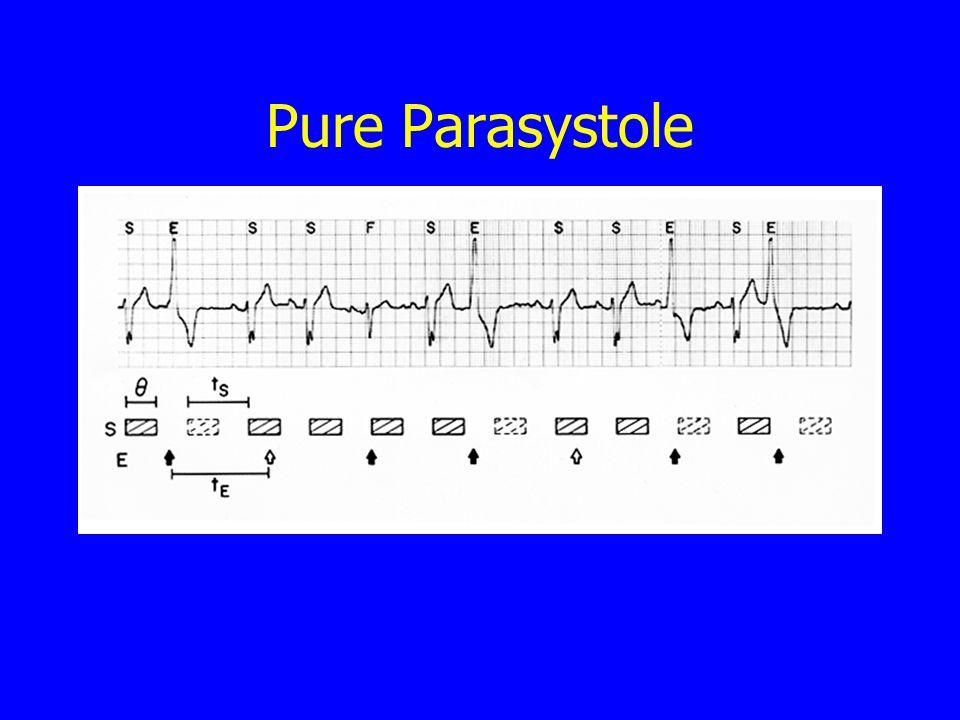 Pure Parasystole