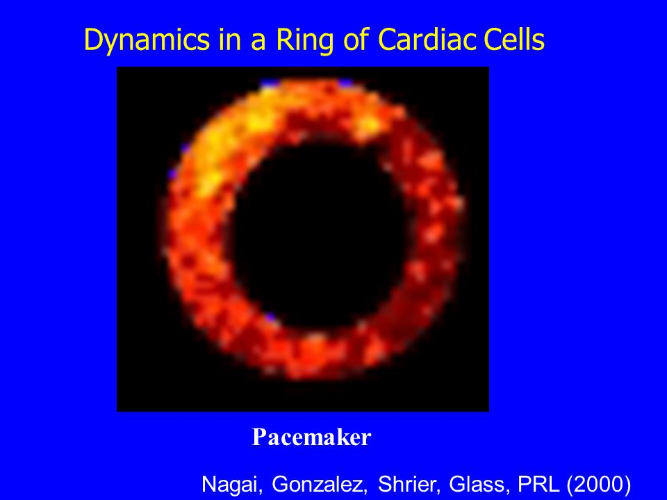 Pacemaker Nagai, Gonzalez, Shrier, Glass, PRL (2000) Dynamics in a Ring of Cardiac Cells