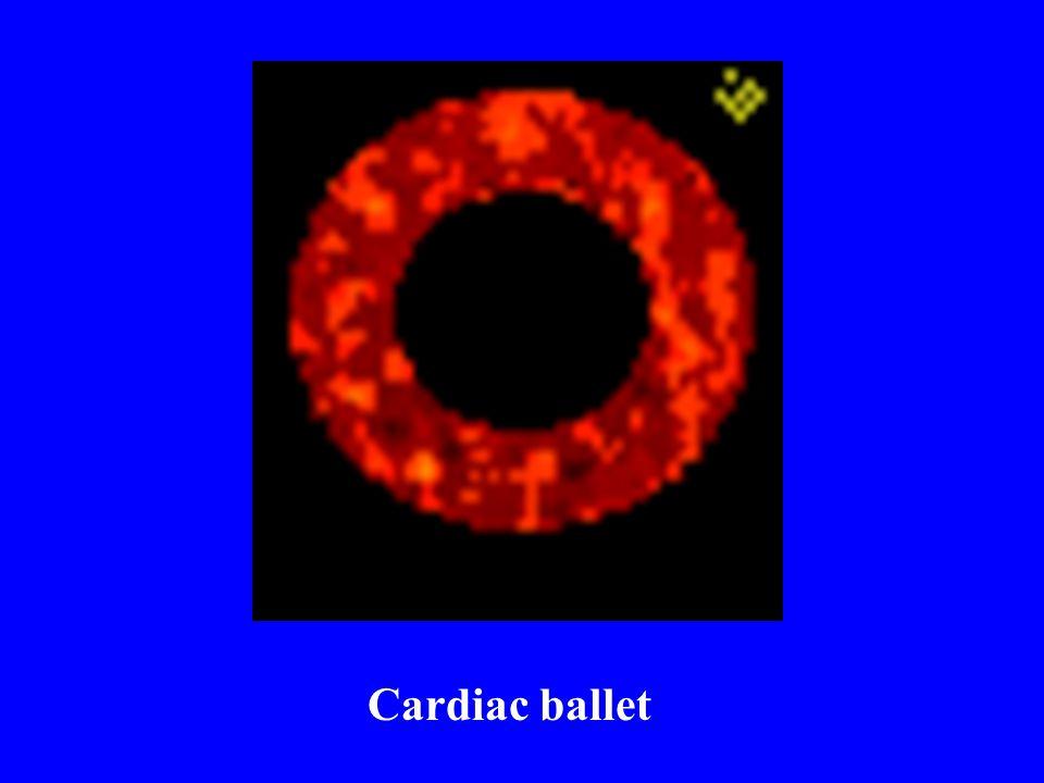 Cardiac ballet