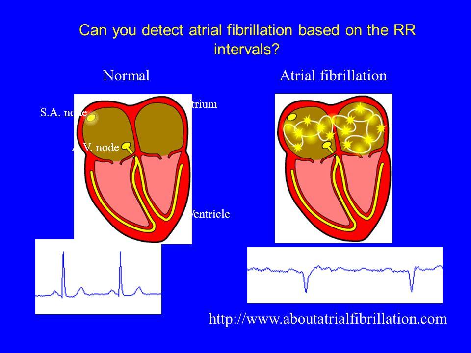 NormalAtrial fibrillation http://www.aboutatrialfibrillation.com S.A.