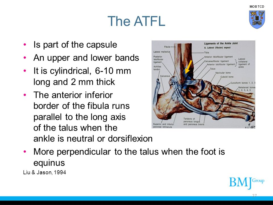 The ATFL Is part of the capsule An upper and lower bands It is cylindrical, 6-10 mm long and 2 mm thick The anterior inferior border of the fibula run