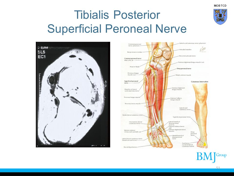 Tibialis Posterior Superficial Peroneal Nerve 51 MOB TCD