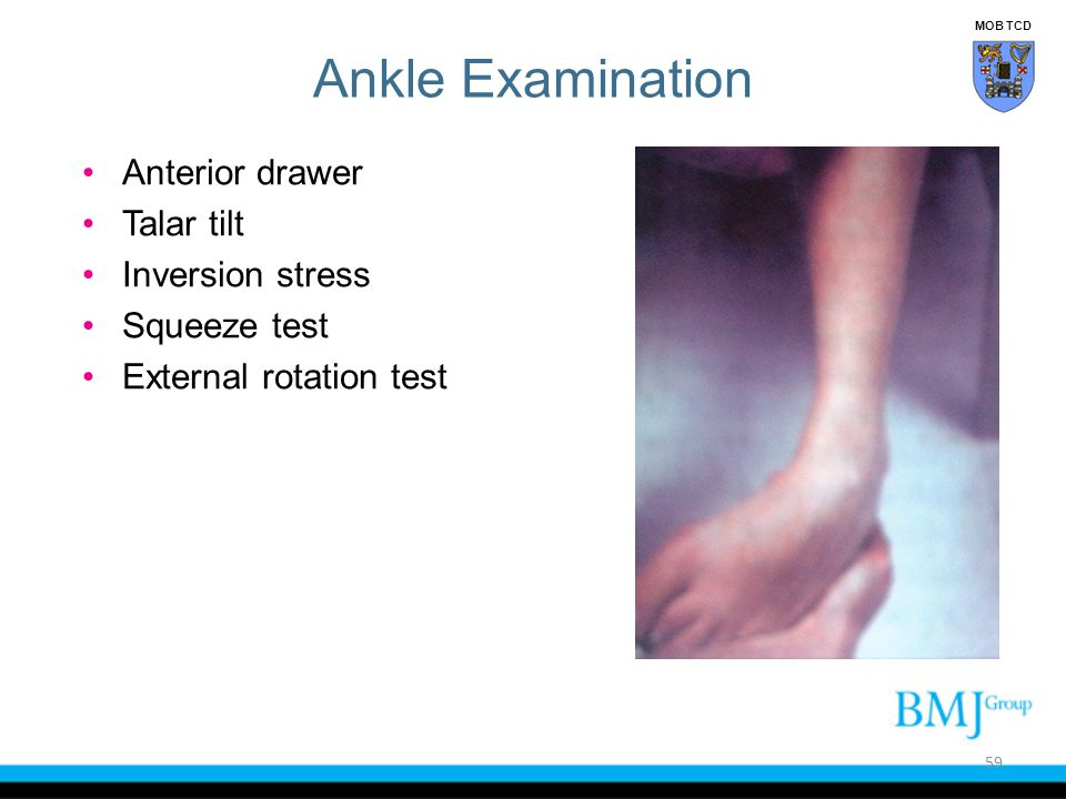 Ankle Examination Anterior drawer Talar tilt Inversion stress Squeeze test External rotation test 59 MOB TCD