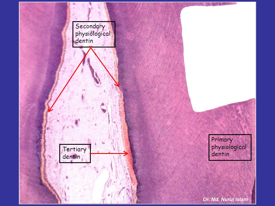 Primary physiological dentin Secondary physiological dentin Tertiary dentin