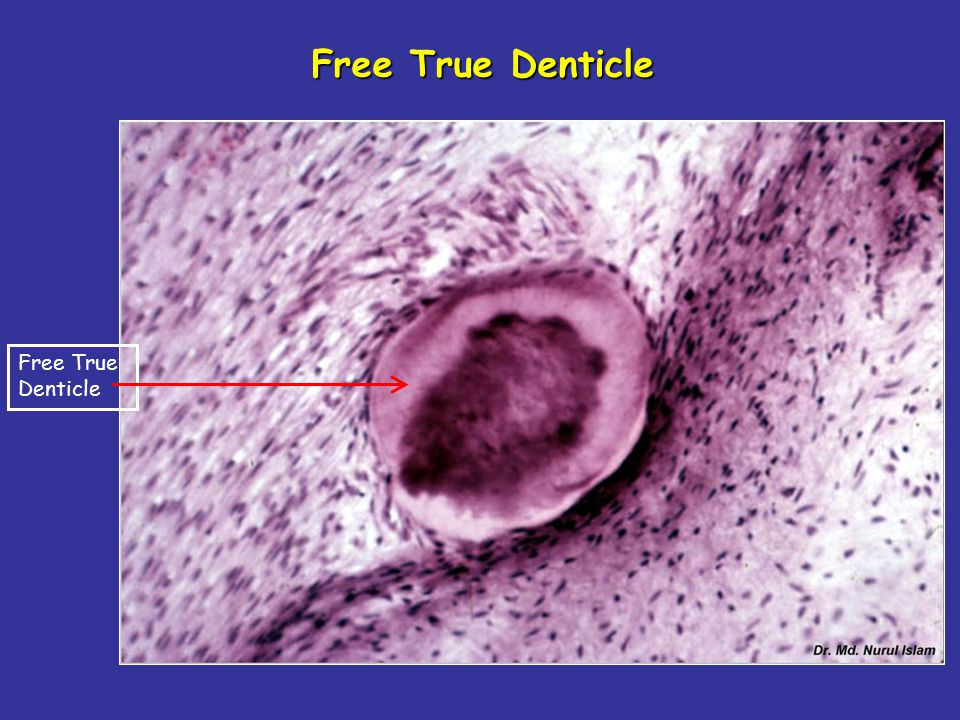 Free True Denticle Free True Denticle