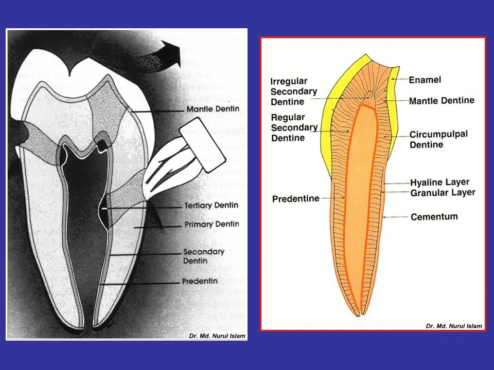 Free False Denticle